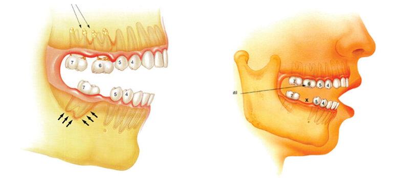 Hvorfor må man erstatte en mistet tann?