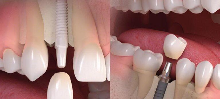 Moderne tannimplantat