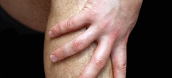 Stramme muskelhinner med trykk i leggen – anstrengelsesutløst smertetilstand