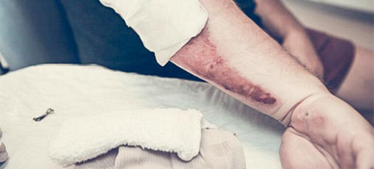 Harpiksbasert salve leger sår raskt og uten antibiotika