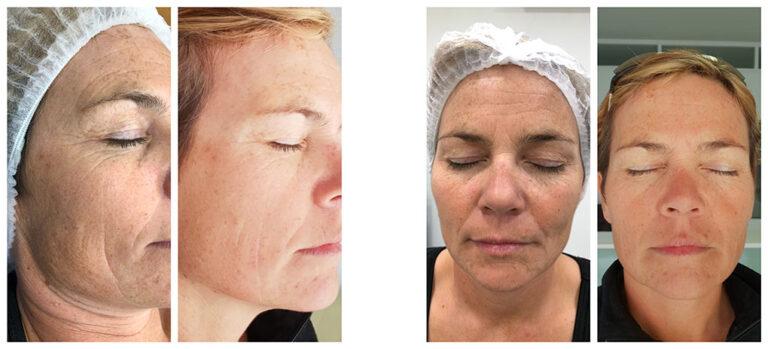 PhiLings-behandlinger som endrer huden din