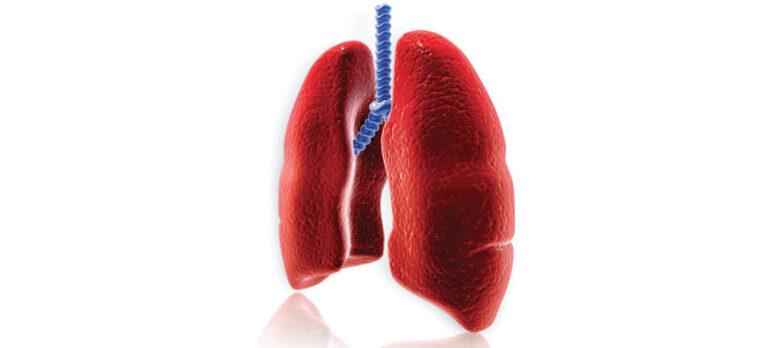 Lungeproblemer
